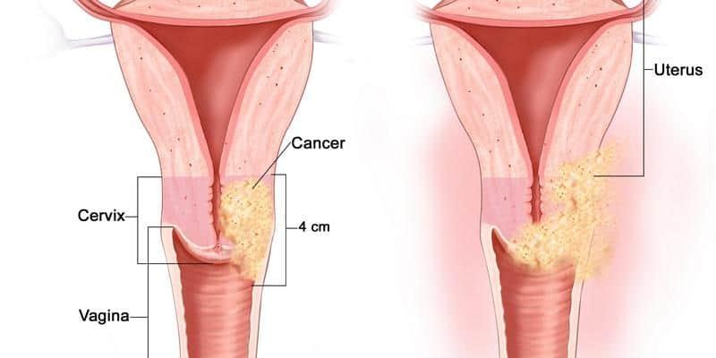 kanker serviks stadium 2