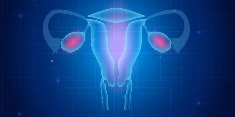 kanker rahim stadium 4