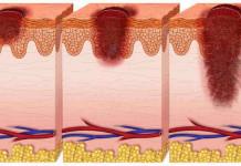stadium kanker kulit