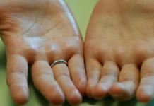 cara mengatasi tangan berkeringat