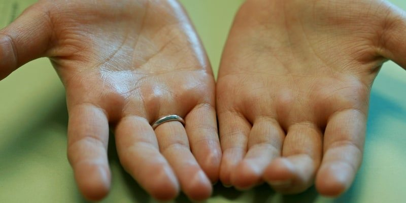 10 Cara Mengatasi Keringat di Tangan yang Simpel Tapi Ampuh