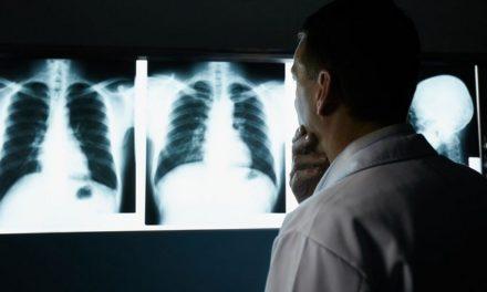 Diagnosis Kanker Paru-Paru