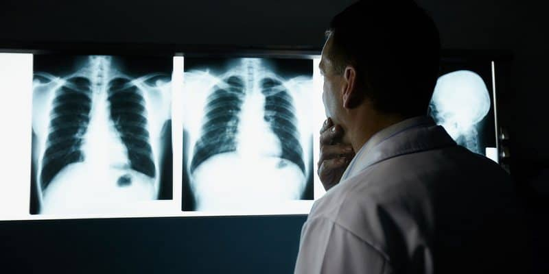 tes untuk diagnosis kanker paru-paru
