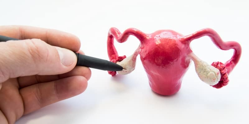 fibroid rahim