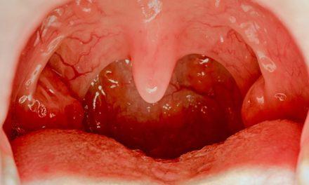 Pemeriksaan Kanker Tenggorokan Yang Harus Dijalani