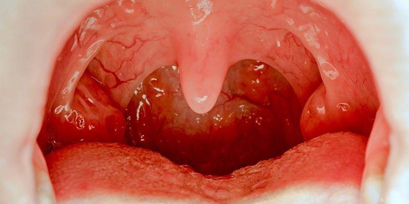 Pemeriksaan Kanker Tenggorokan– Pemeriksaan Kanker Nasofaring