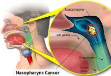 6 Ciri-Ciri Kanker Tenggorokan yang Mudah Dikenali Sebelum ...