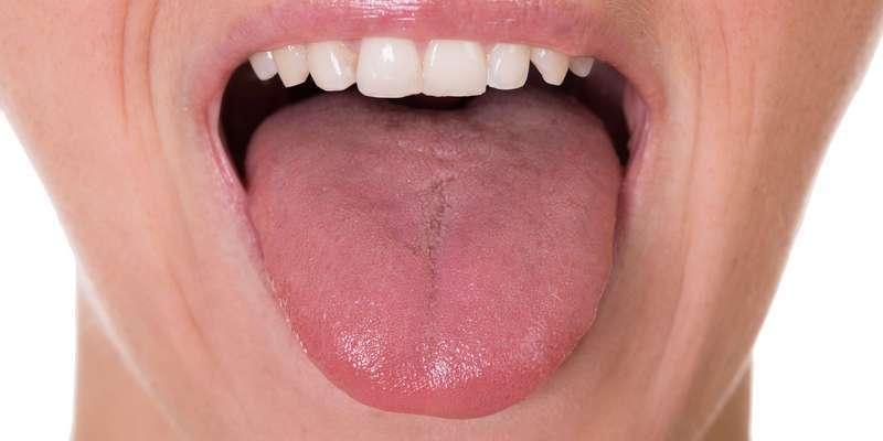 tanda-tanda kanker lidah