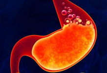 Gastroesophageal Reflux Disease – Apa Itu Penyakit GERD?