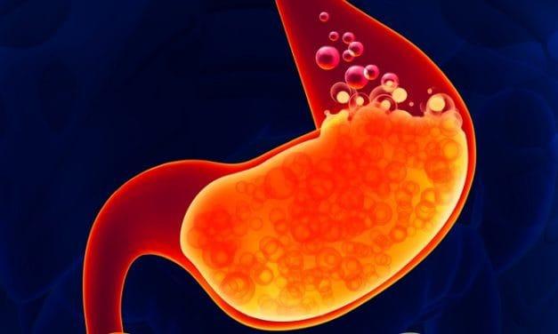 Penyakit GERD: Info Lengkap Seputar Gangguan Lambung