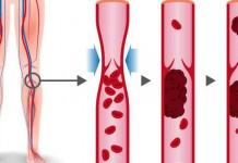 gejala penggumpalan darah