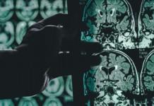 Penyebab Alzheimer