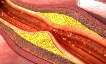 Penyebab Aterosklerosis