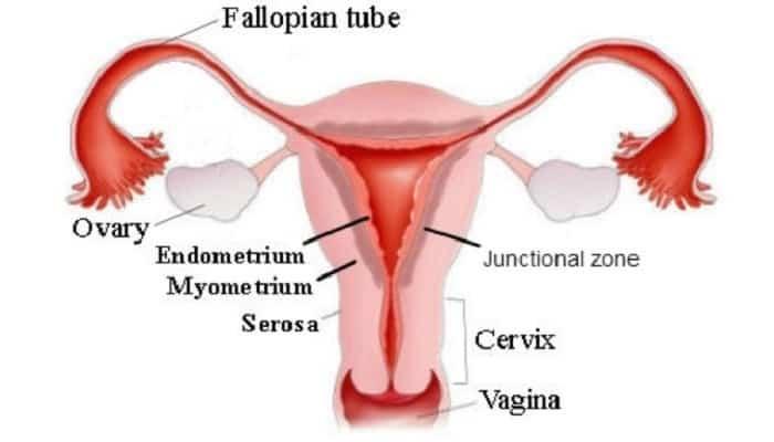Adenomiosis dan Endometriosis