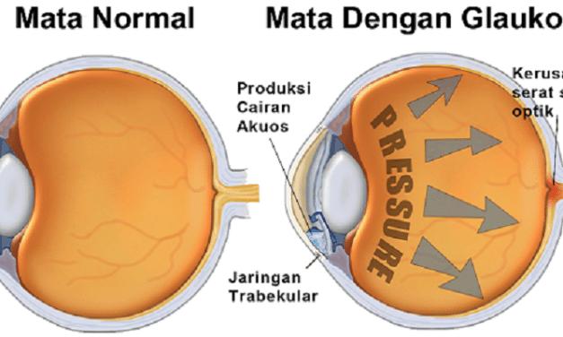 Penyakit Glaukoma — Gejala, Penyebab dan Pengobatan