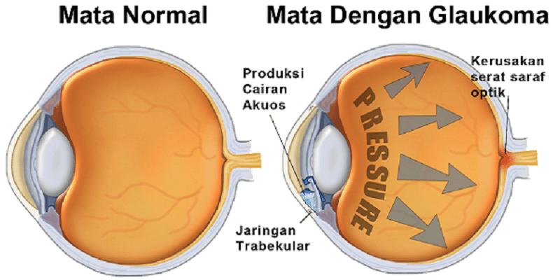 Penyakit Glaukoma; Gejala Glaukoma; Penyebab Glaukoma; Pengobatan Glaukoma; Pengobatan Glaukoma Tanpa Operasi