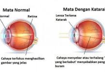 Penyakit katarak pada anak (remaja), lansia (orang tua), pria (laki-laki) ataupun wanita (perempuan)