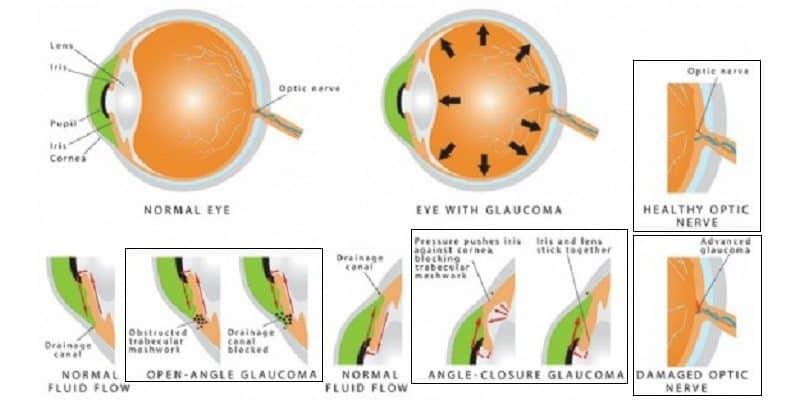 Penyebab Glaukoma