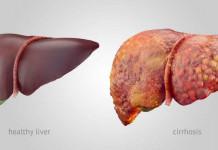 sirosis hati - penyakit hati - gangguan fungsi hati