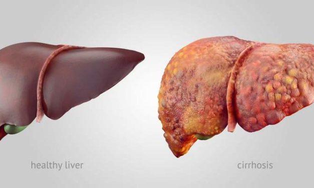 Sirosis Hati: Penyebab, Pencegahan, dan Pengobatannya