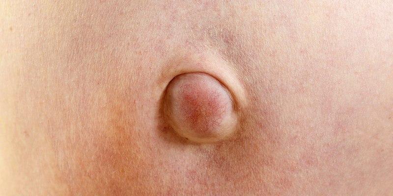 sakit hernia - penyakit turun berok - penyebab penyakit hernia - ciri-ciri penyakit hernia - cara mengobati penyakit hernia