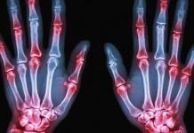 penyakit rematik - gejala rematik - penyebab rematik - cara mengobati rematik