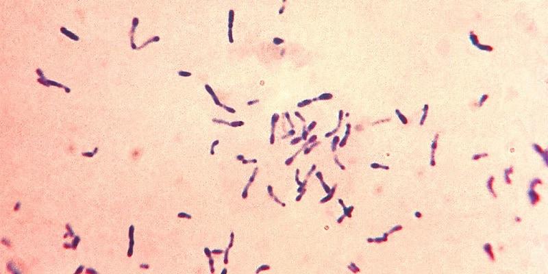 penyakit difteri pada anak - tanda penyakit difteri - penyebab penyakit difteri - cara mencegah penyakit difteri