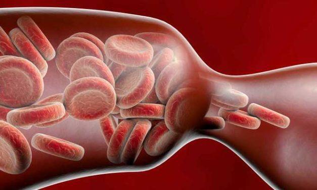Penyempitan Pembuluh Darah: Ciri-Ciri, Penyebab, dan Cara Mengatasinya