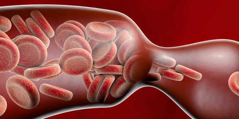 penyempitan pembuluh darah - penyumbatan pembuluh darah - ciri-ciri pembuluh darah