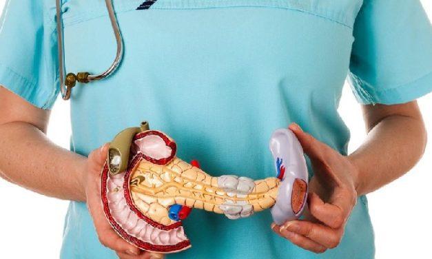 Penyakit Pankreatitis, Kenali Penyebab dan Gejalanya Di Sini