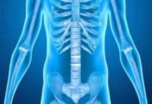 Pemeriksaan Kanker Tulang