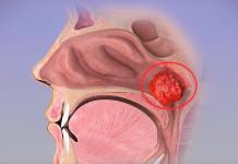 Hipertrofi Adenoid atau Pembesaran Adenoid
