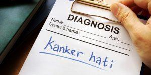 Ilustrasi Diagnosis Kanker Hati