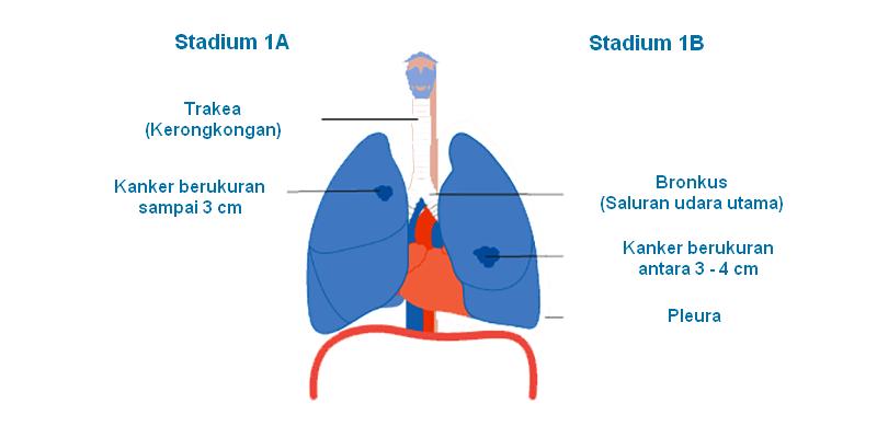 Kanker Paru-Paru Stadium 1: Info Penting bagi Para ...