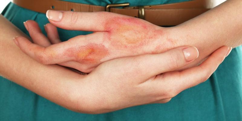 mengobati luka bakar - mengatasi luka bakar - bekas luka