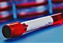 Kanker Darah: diagnosis, tes, pengamatan, penelitian, atau pemeriksaan kanker darah