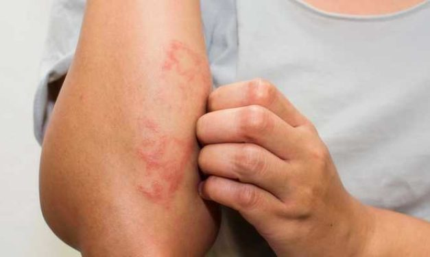 Penyakit Eksim: Eksim Kering dan Eksim Basah