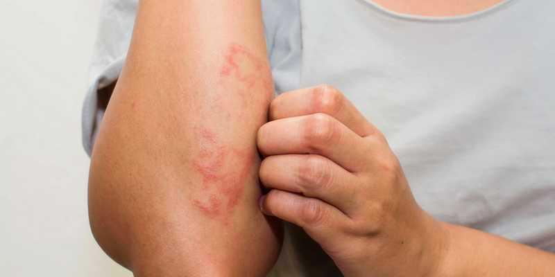 penyakit eksim - penyakit kulit eksim - eksim kering - eksim basah - eksim kulit