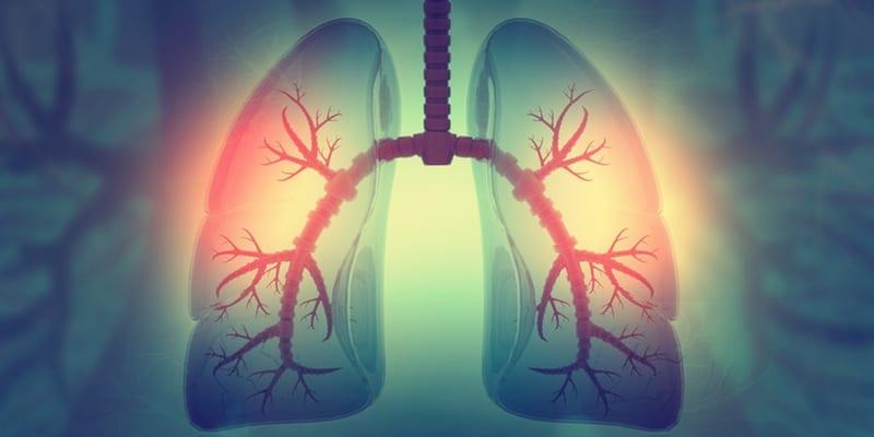 penyebab asthma - penyebab sesak nafas