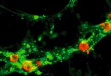 Kanker Getah Bening: fase, level, tahap, tingkat, atau stadium kanker getah bening