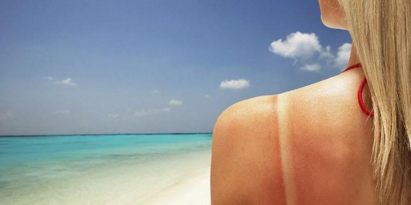 penyakit kanker kulit - kanker kulit adalah - efek sinar matahari