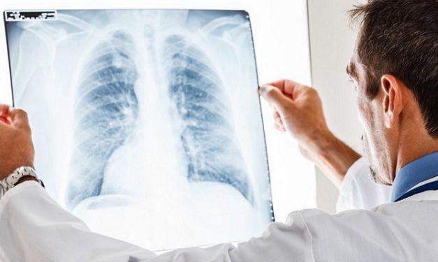 Mengenal Lebih Jauh Penyakit Paru-Paru Pneumotorax