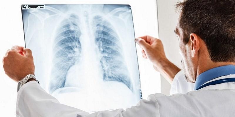 penyakit paru-paru - pneumotorax adalah - kapasitas paru-paru