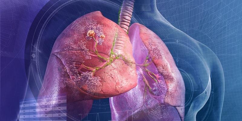 akibat kanker paru-paru - kanker paru-paru - efek penyakit paru-paru - organ paru-paru
