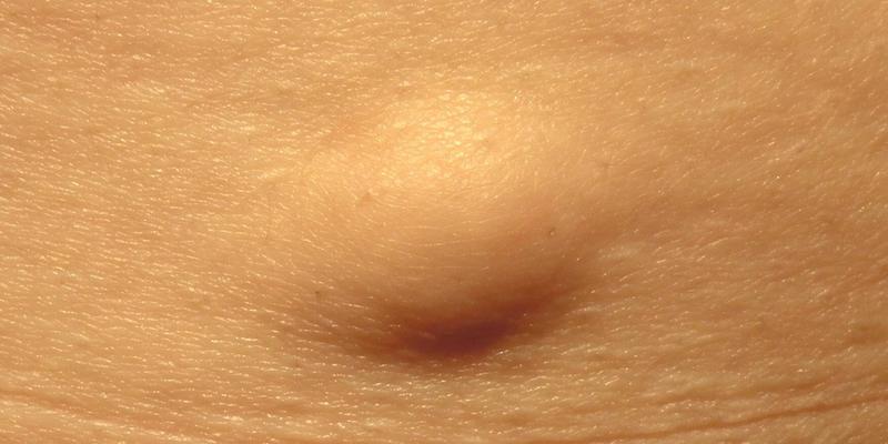 ciri-ciri tumor ganas - penyebab tumor ganas - perbedaan tumor jinak dan ganas - obat tumor ganas