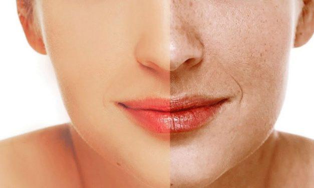 Flek Hitam di Wajah: Info Penting Seputar Hiperpigmentasi Kulit