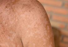 penyakit panu - penyebab panu - mengobati panu - gejala panu