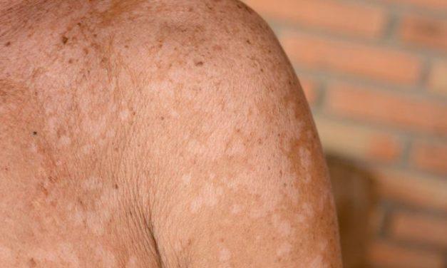 Penyakit Panu: Info Penting Seputar Infeksi Jamur di Kulit