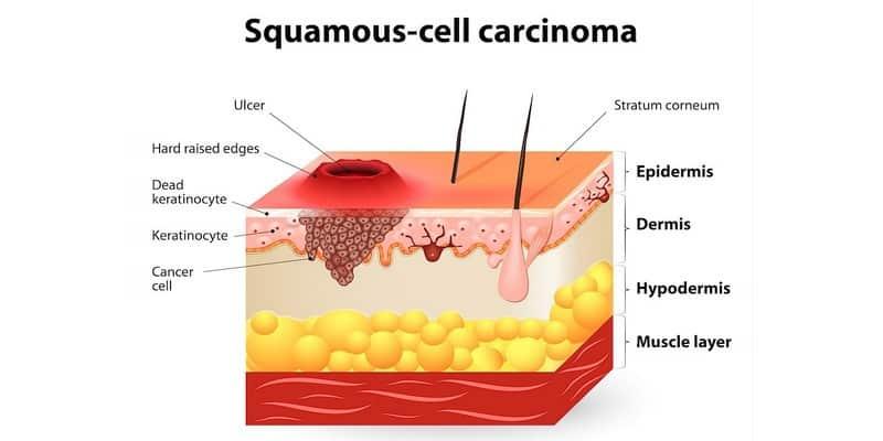 kanker karsinoma - karsinoma sel basal - karsinoma sel skuamosa - adenokarsinoma