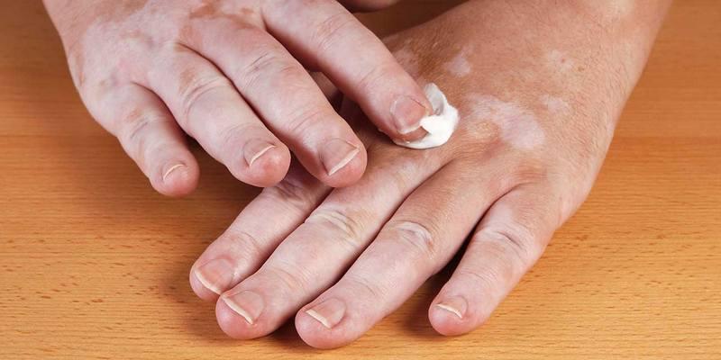 penyakit vitiligo - penyebab vitiligo - gejala vitiligo - bercak putih pada kulit - pengobatan vitiligo